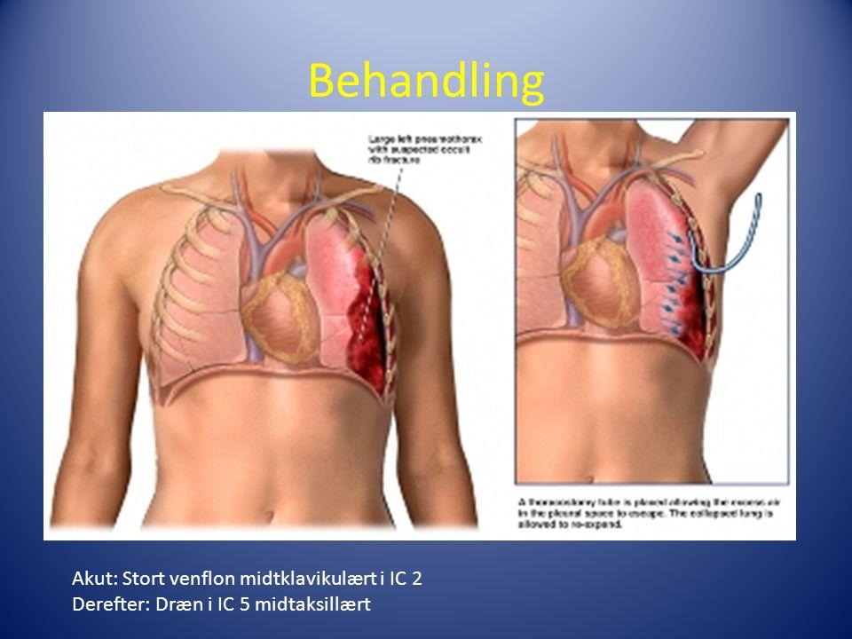 Behandling Akut: Stort venflon midtklavikulært i IC 2