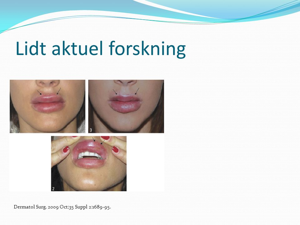 Lidt aktuel forskning Dermatol Surg. 2009 Oct;35 Suppl 2:1689-95.