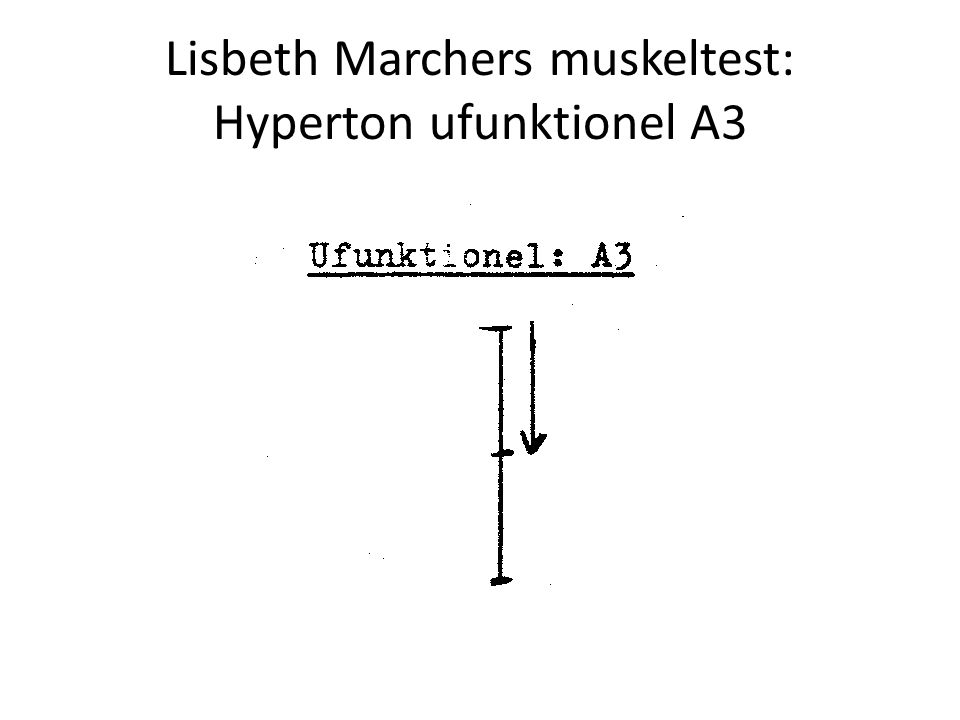 Lisbeth Marchers muskeltest: Hyperton ufunktionel A3