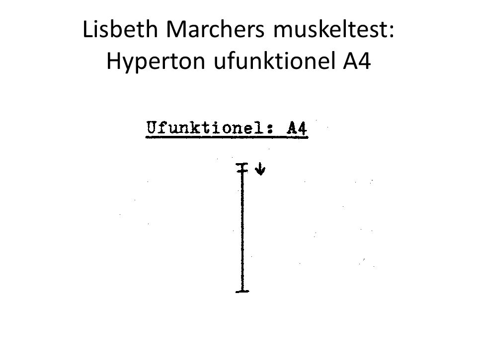 Lisbeth Marchers muskeltest: Hyperton ufunktionel A4