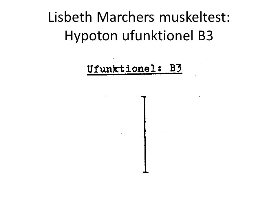 Lisbeth Marchers muskeltest: Hypoton ufunktionel B3