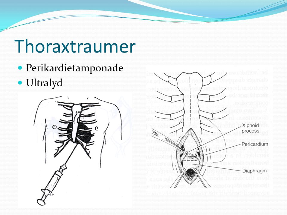 Thoraxtraumer Perikardietamponade Ultralyd