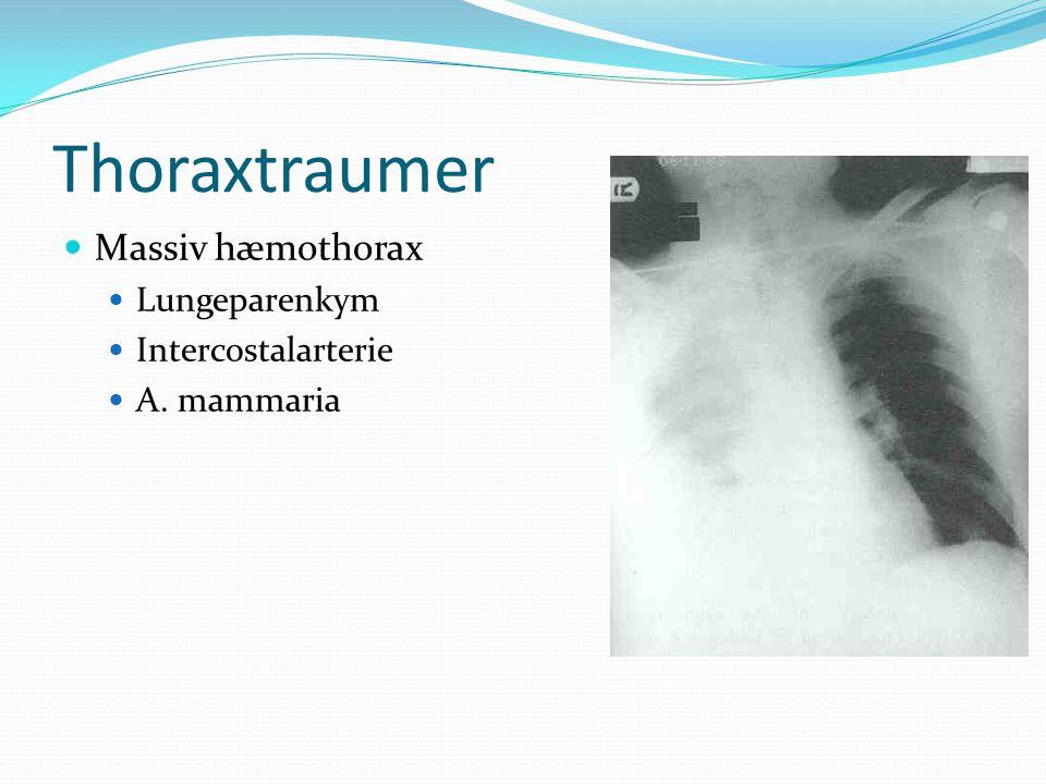 Thoraxtraumer Massiv hæmothorax Lungeparenkym Intercostalarterie