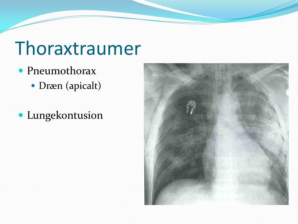 Thoraxtraumer Pneumothorax Dræn (apicalt) Lungekontusion