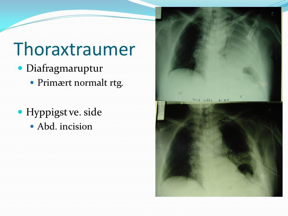 Thoraxtraumer Diafragmaruptur Hyppigst ve. side Primært normalt rtg.