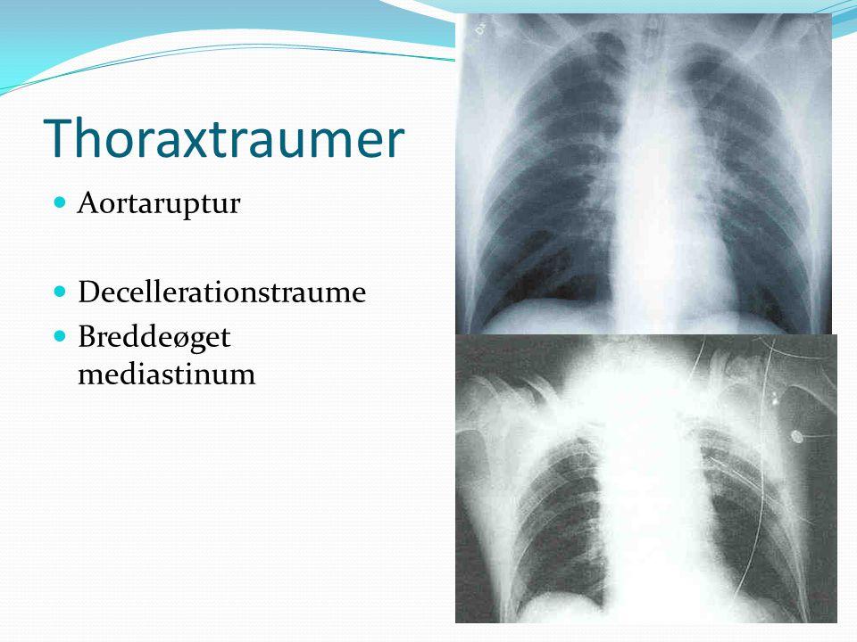 Thoraxtraumer Aortaruptur Decellerationstraume Breddeøget mediastinum