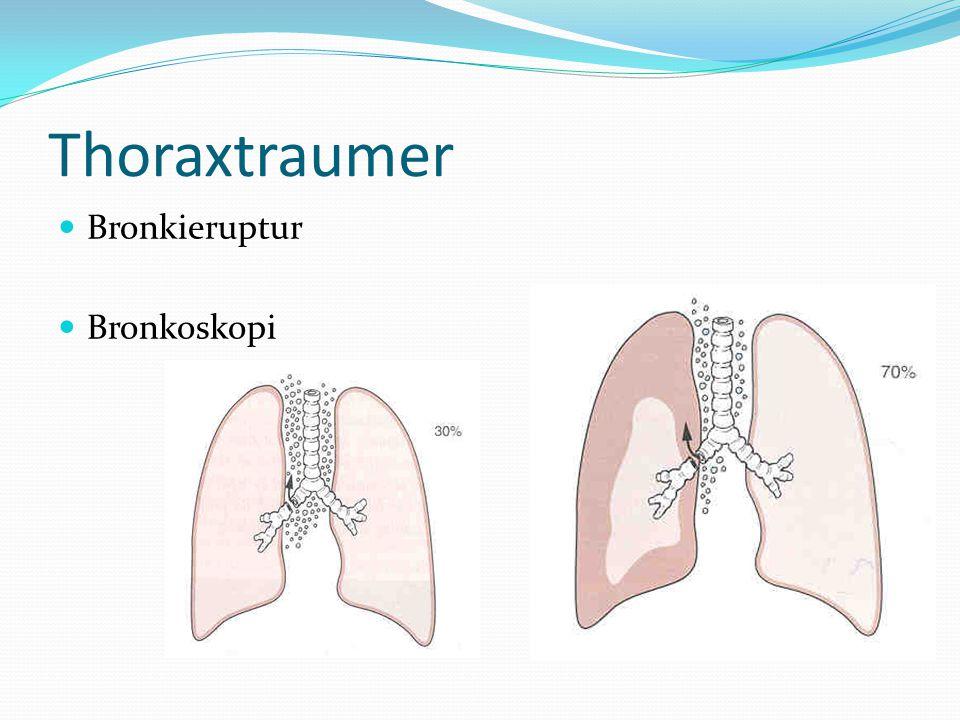 Thoraxtraumer Bronkieruptur Bronkoskopi