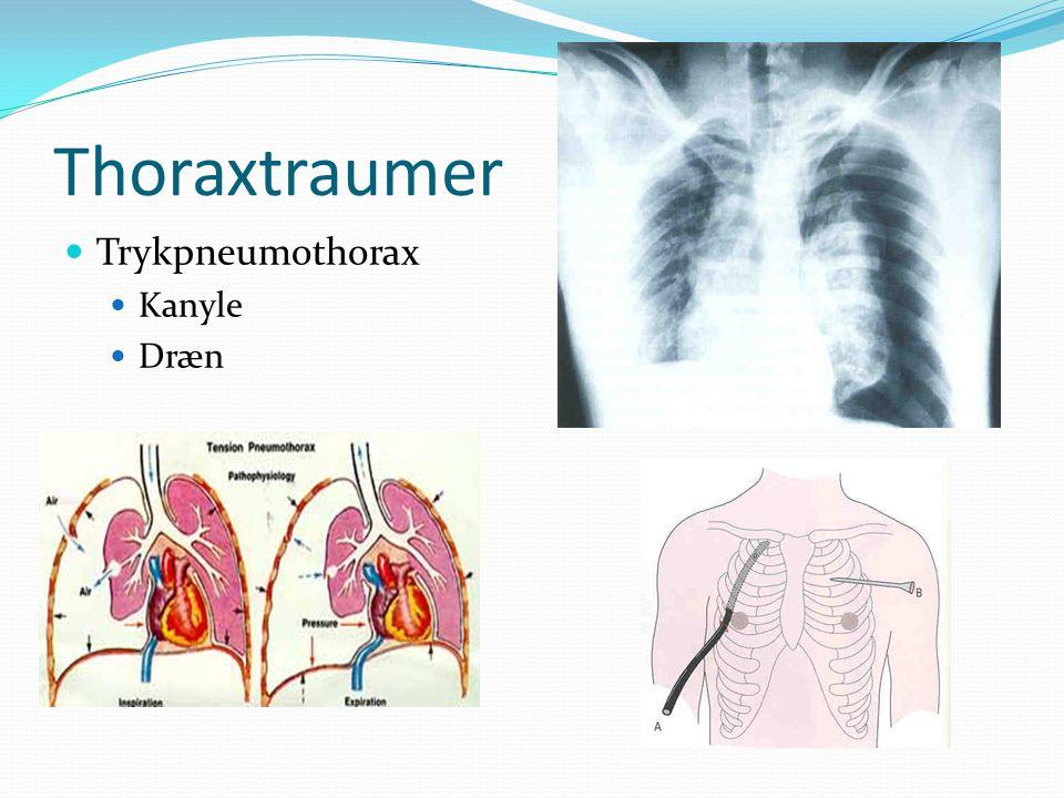 Thoraxtraumer Trykpneumothorax Kanyle Dræn