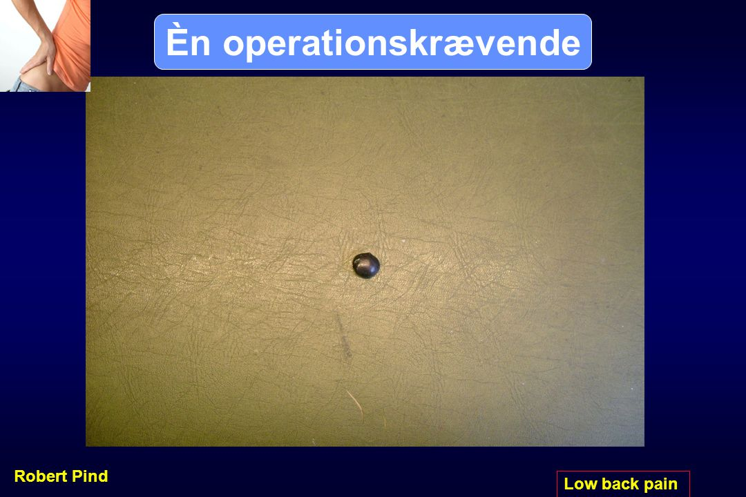 Èn operationskrævende