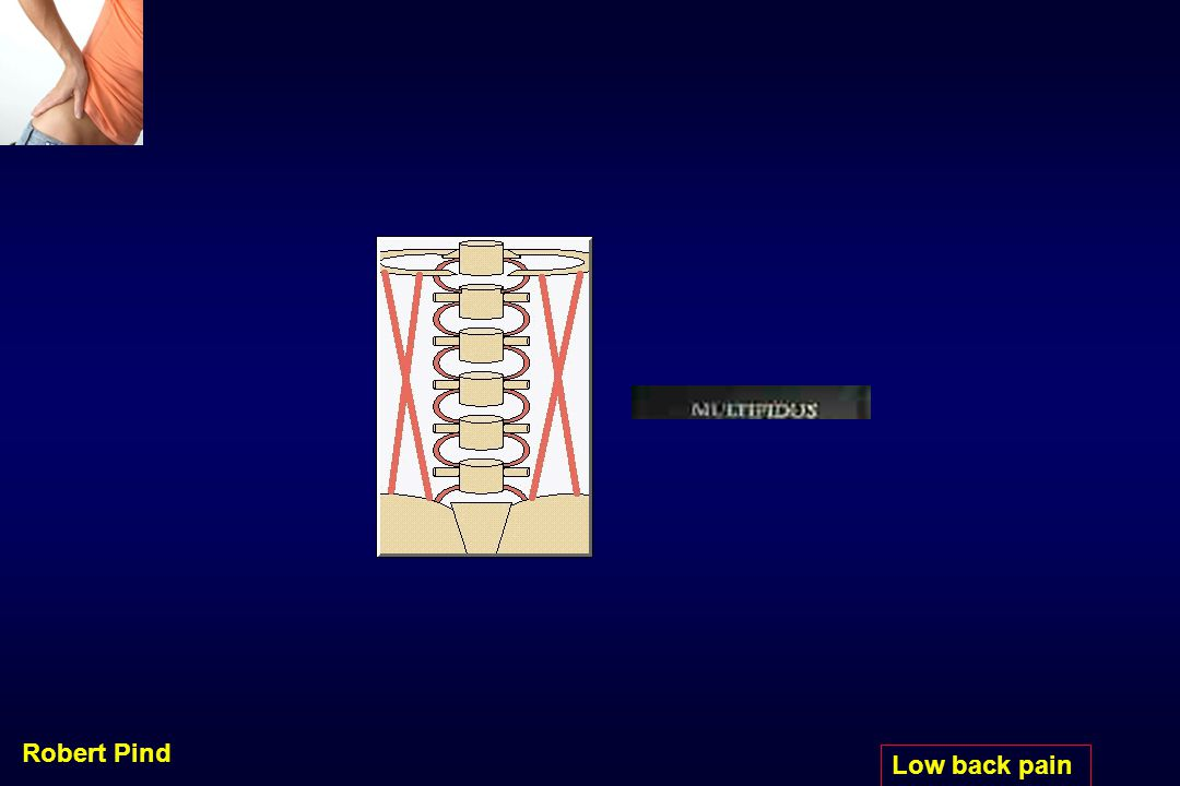 Robert Pind Low back pain