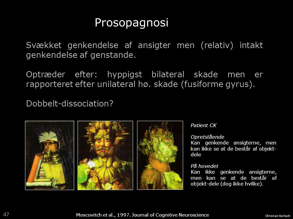 Prosopagnosi Svækket genkendelse af ansigter men (relativ) intakt genkendelse af genstande.