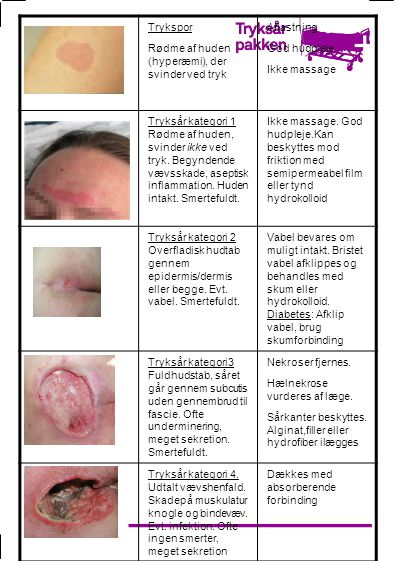 Trykspor Rødme af huden (hyperæmi), der svinder ved tryk. Aflastning. God hudpleje. Ikke massage.