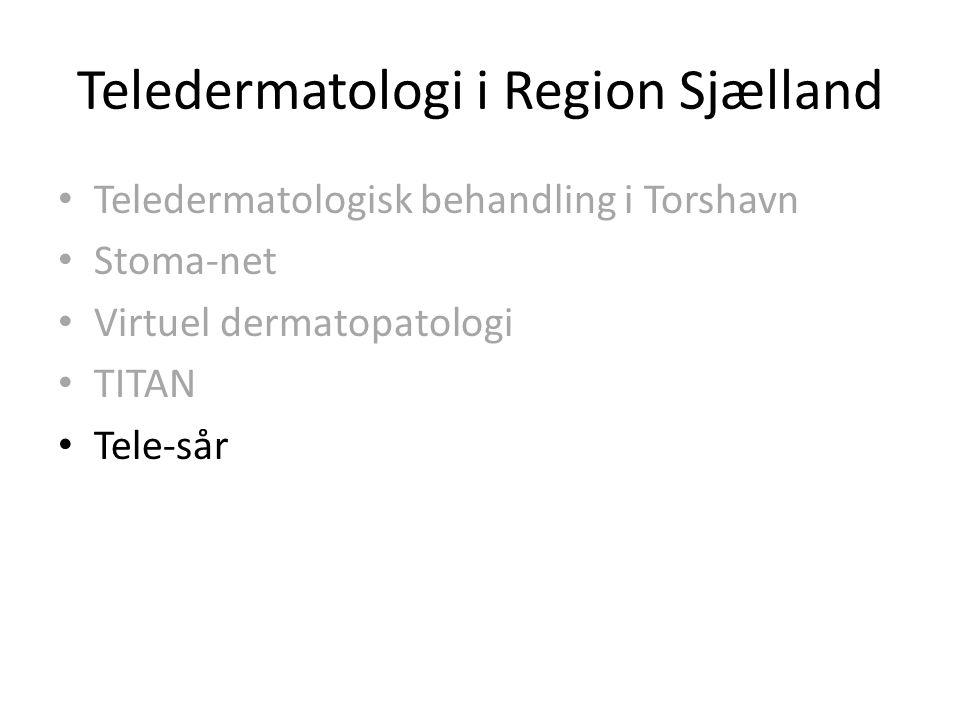 Teledermatologi i Region Sjælland