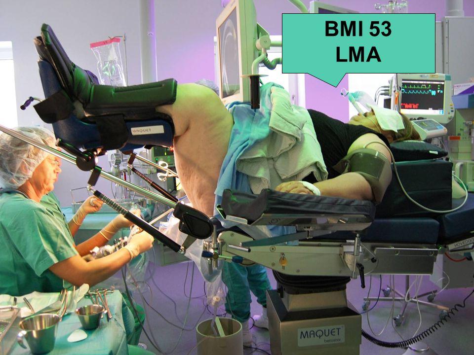 BMI 53 LMA