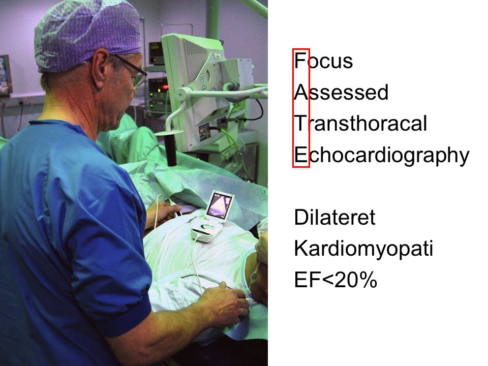 Focus Assessed Transthoracal Echocardiography Dilateret Kardiomyopati EF<20%
