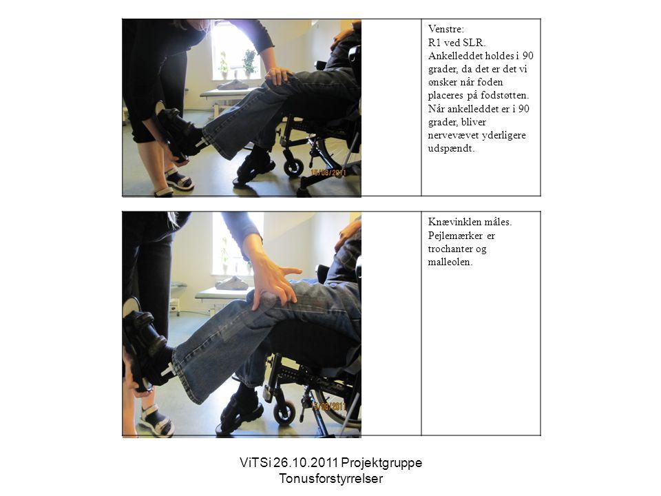 ViTSi 26.10.2011 Projektgruppe Tonusforstyrrelser