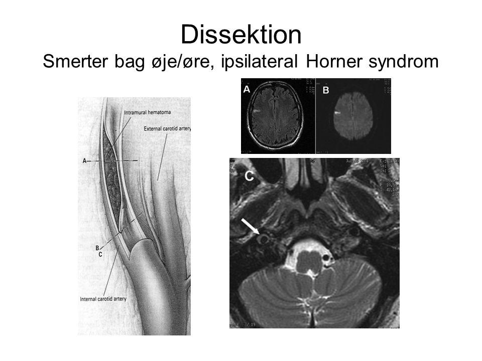 Dissektion Smerter bag øje/øre, ipsilateral Horner syndrom