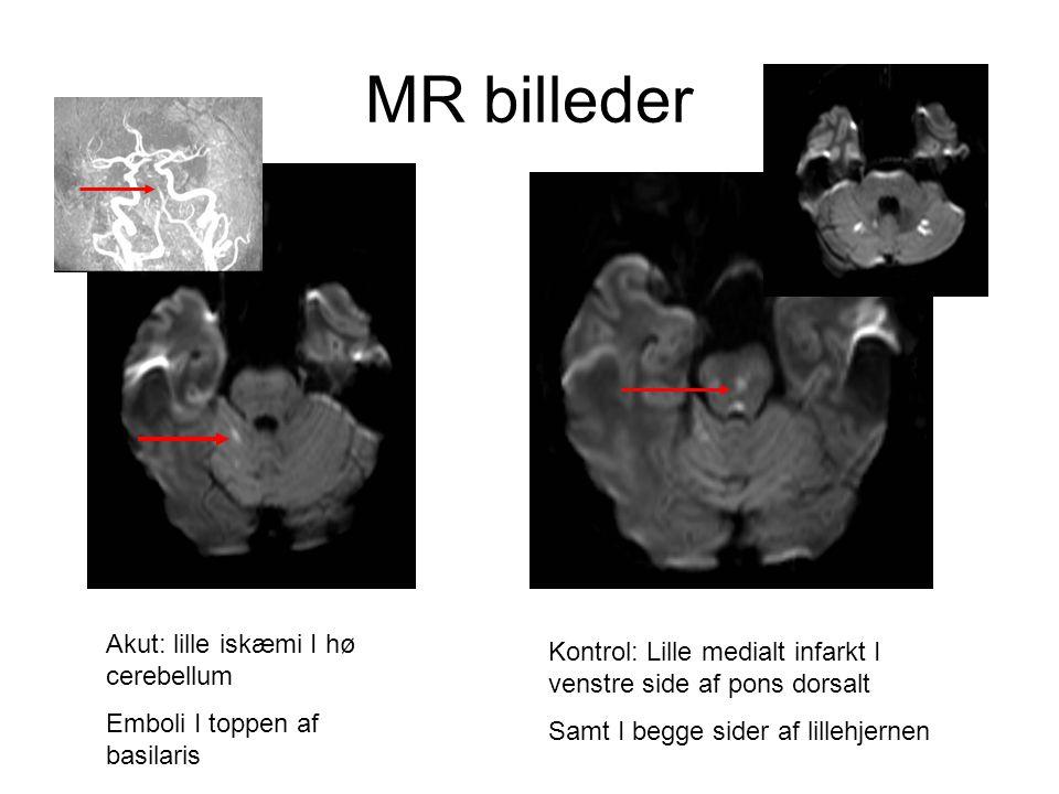MR billeder Akut: lille iskæmi I hø cerebellum
