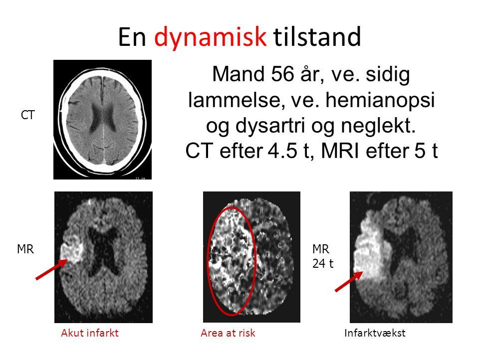 En dynamisk tilstand Mand 56 år, ve. sidig lammelse, ve. hemianopsi og dysartri og neglekt. CT efter 4.5 t, MRI efter 5 t.