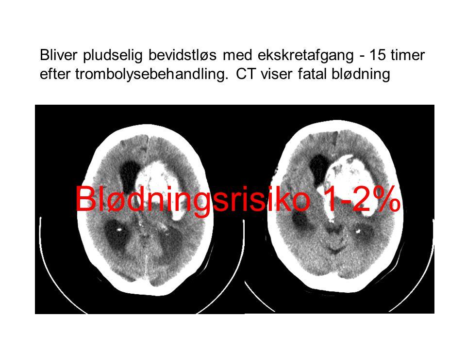 Bliver pludselig bevidstløs med ekskretafgang - 15 timer efter trombolysebehandling. CT viser fatal blødning