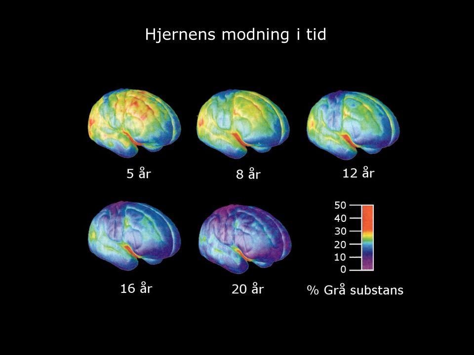Hjernens modning i tid