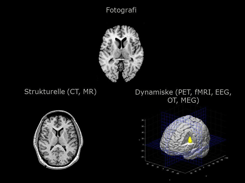 Dynamiske (PET, fMRI, EEG,