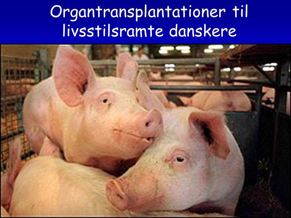 Organtransplantationer til livsstilsramte danskere