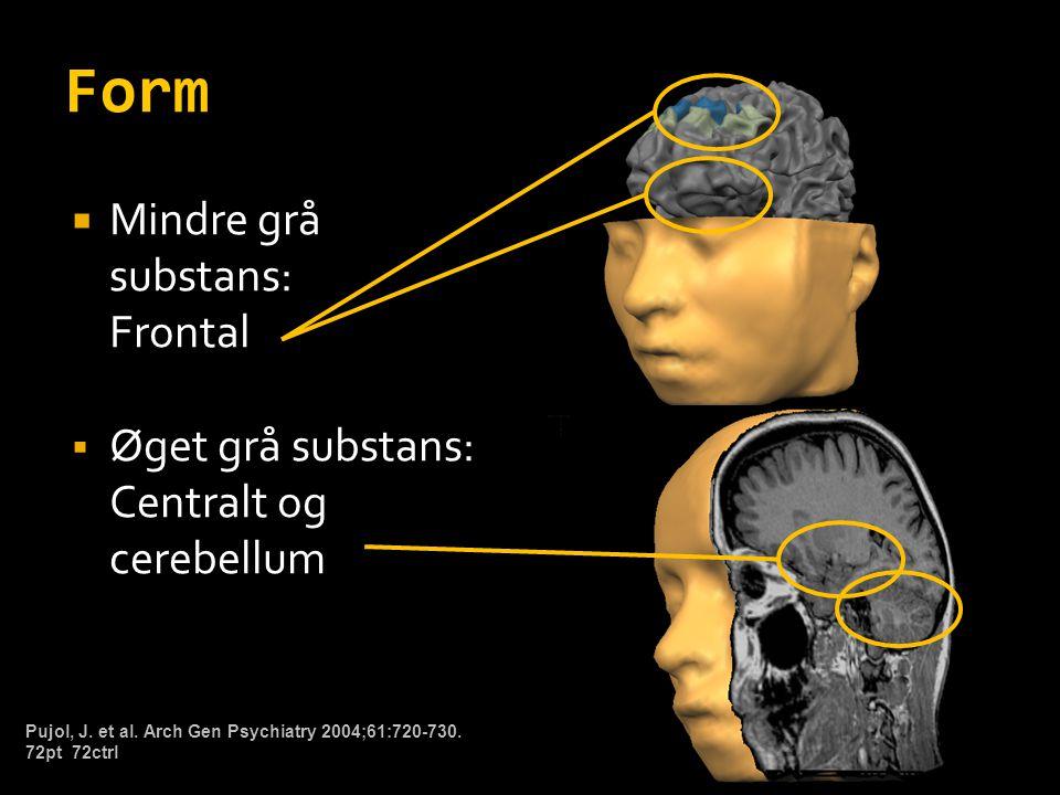 Form Mindre grå substans: Frontal Øget grå substans: