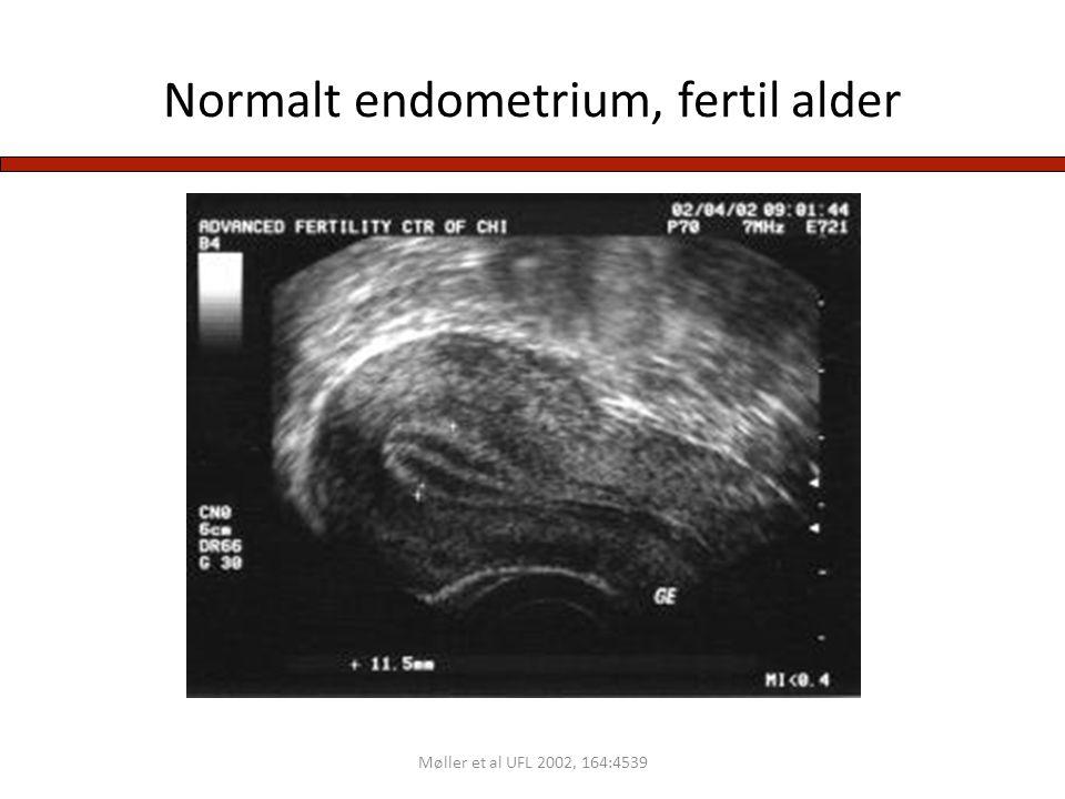 Normalt endometrium, fertil alder