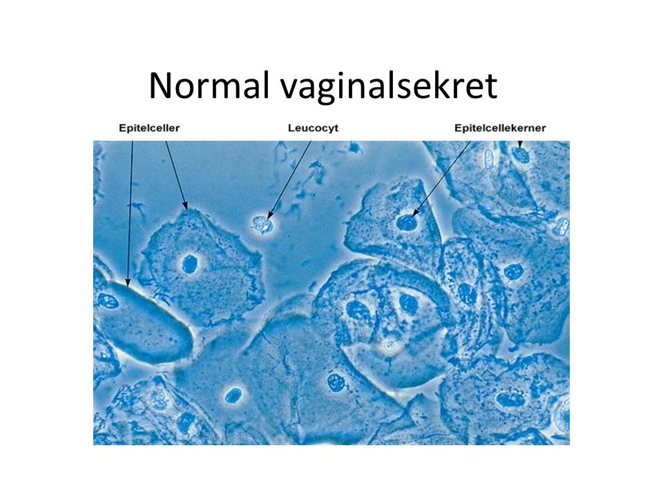 Normal vaginalsekret