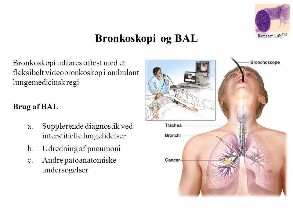 Bronkoskopi og BAL Ronster LabTM. Bronkoskopi udføres oftest med et fleksibelt videobronkoskop i ambulant lungemedicinsk regi.
