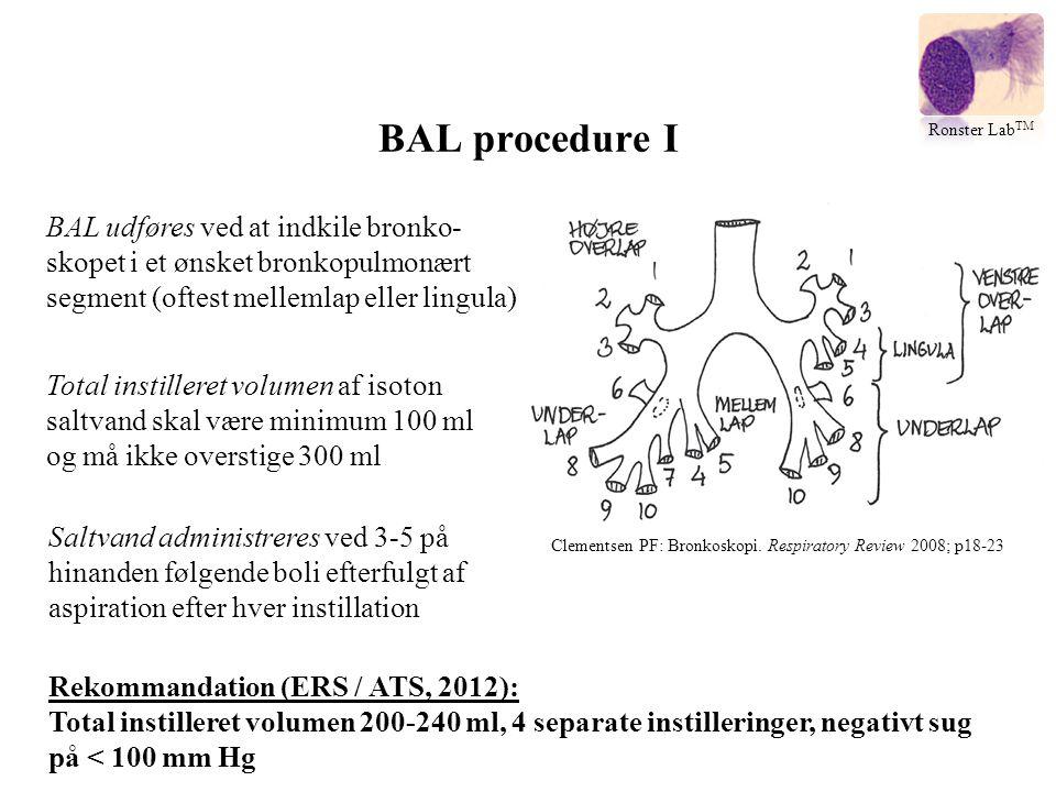 BAL procedure I Ronster LabTM. BAL udføres ved at indkile bronko-skopet i et ønsket bronkopulmonært segment (oftest mellemlap eller lingula)