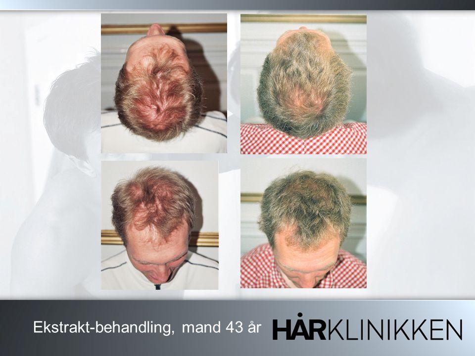 Ekstrakt-behandling, mand 43 år