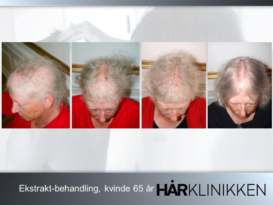 Ekstrakt-behandling, kvinde 65 år