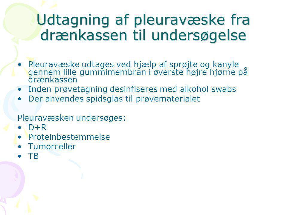 Udtagning af pleuravæske fra drænkassen til undersøgelse