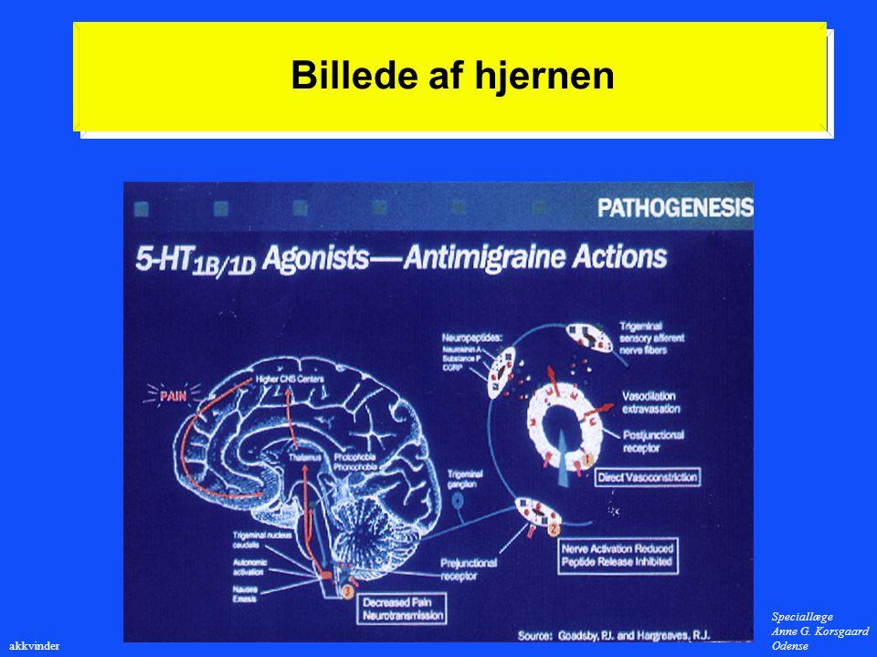 Billede af hjernen