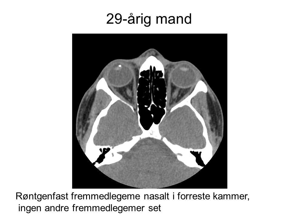 29-årig mand Røntgenfast fremmedlegeme nasalt i forreste kammer,