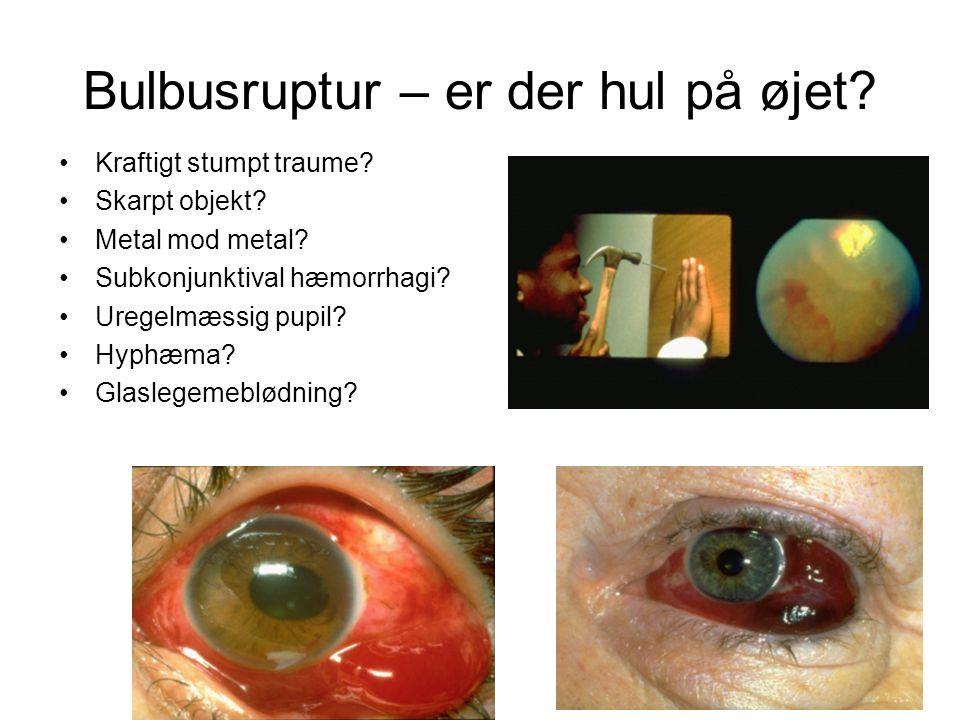 Bulbusruptur – er der hul på øjet