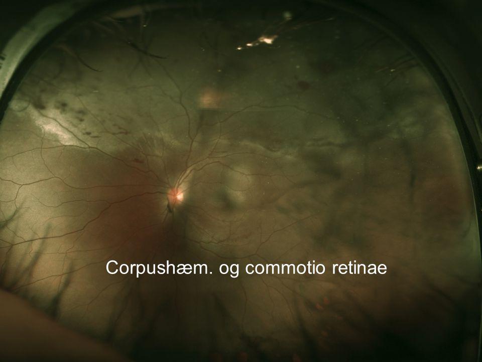 Corpushæm. og commotio retinae