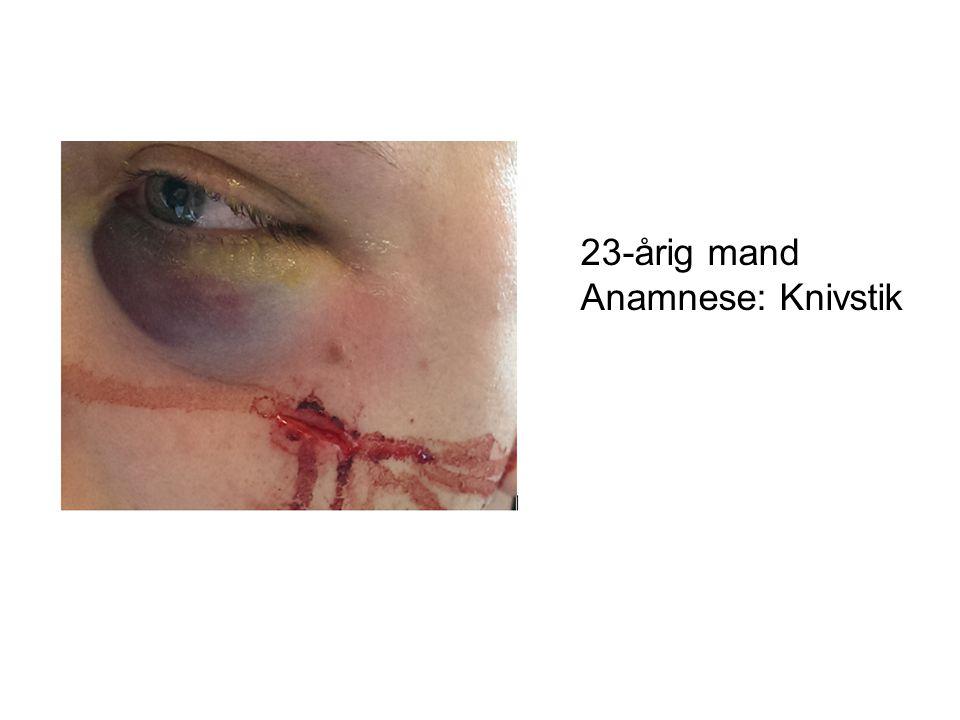 23-årig mand Anamnese: Knivstik