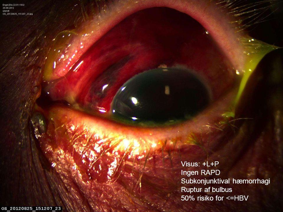 Visus: +L+P Ingen RAPD Subkonjunktival hæmorrhagi Ruptur af bulbus 50% risiko for <=HBV