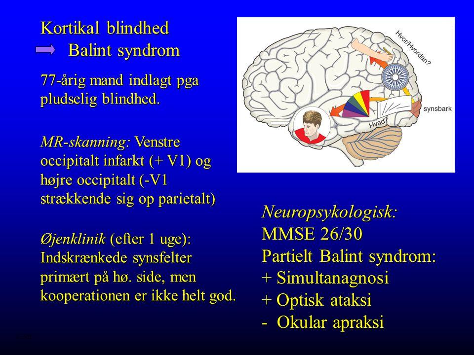 Kortikal blindhed Balint syndrom