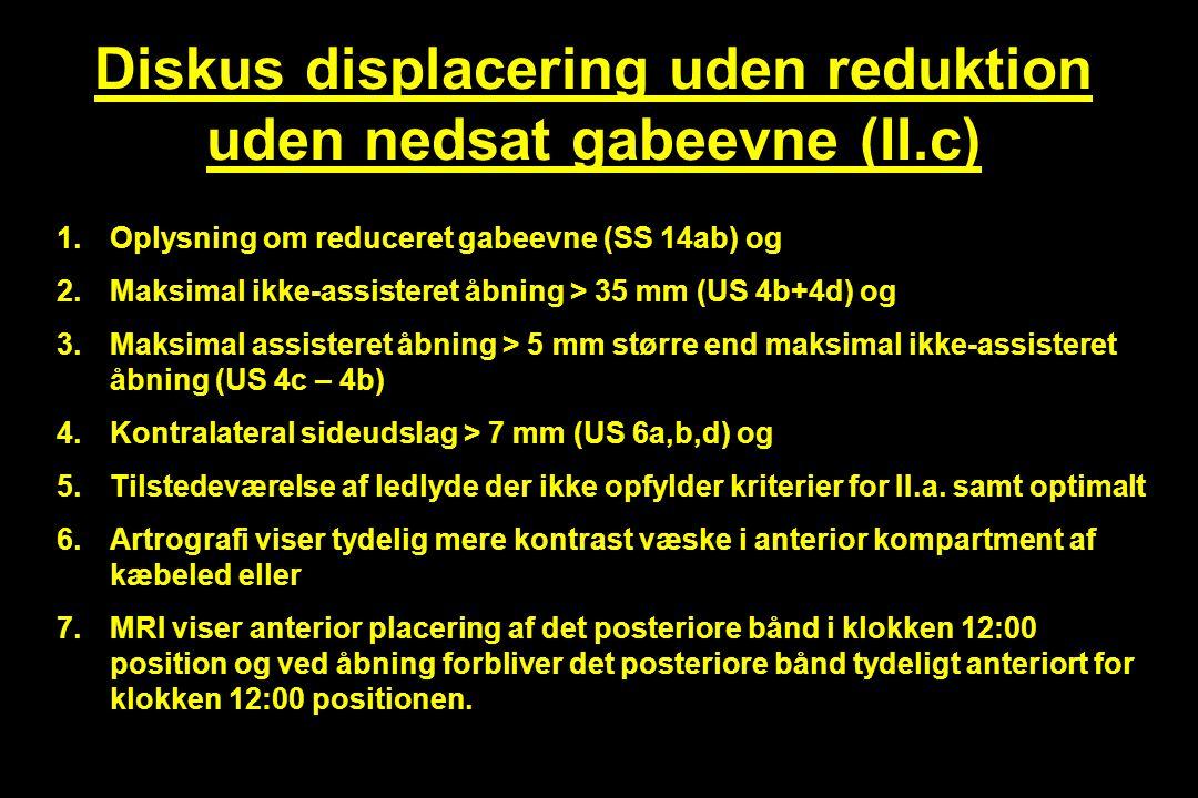 Diskus displacering uden reduktion uden nedsat gabeevne (II.c)