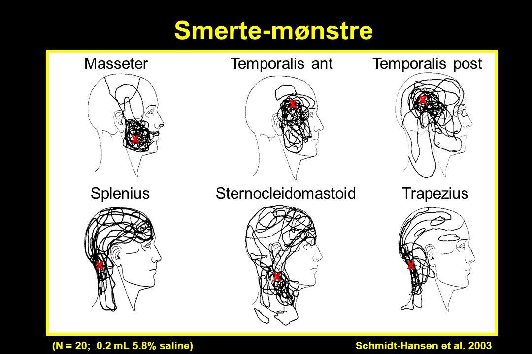 Smerte-mønstre Masseter Temporalis ant Temporalis post Trapezius