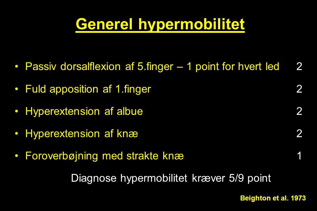 Generel hypermobilitet