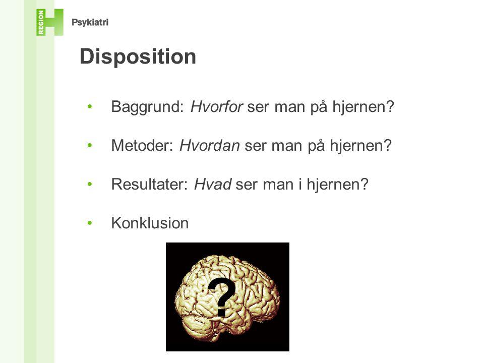 Disposition Baggrund: Hvorfor ser man på hjernen