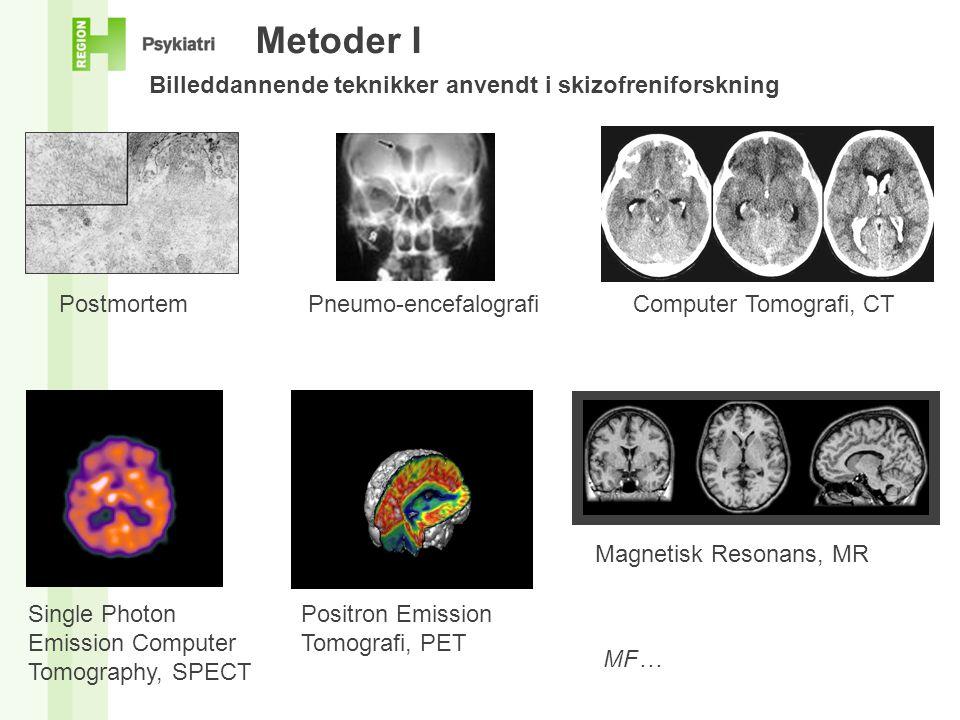 Metoder I Billeddannende teknikker anvendt i skizofreniforskning