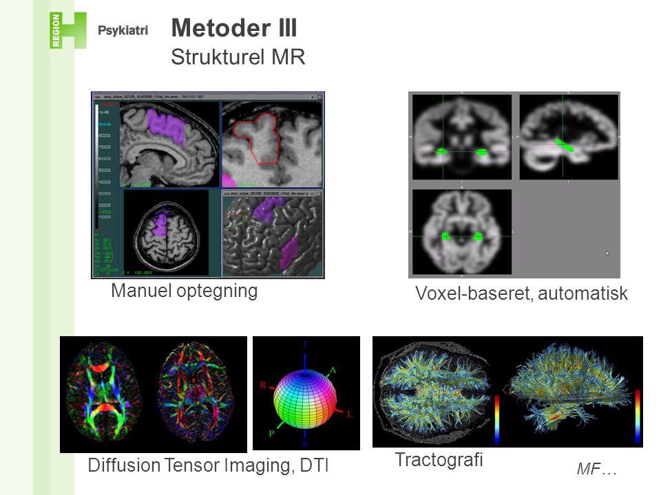 Metoder III Strukturel MR Manuel optegning Voxel-baseret, automatisk