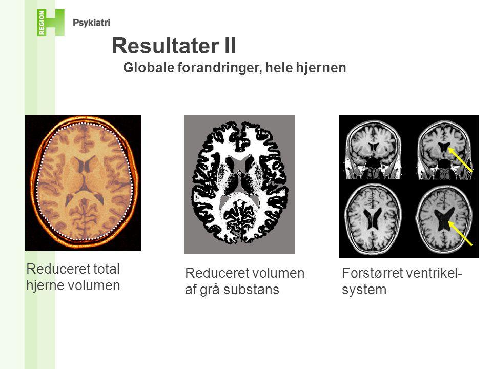 Resultater II Globale forandringer, hele hjernen