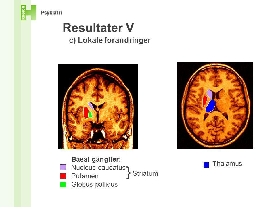 } Resultater V c) Lokale forandringer Basal ganglier: Nucleus caudatus